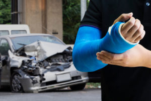 Broken Hand Car Accident Injury - Houston Car Accident Lawyer